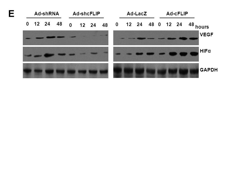 VEGF GAPDH HIFα 0 12 24 48 Ad-LacZAd-shcFLIPAd-shRNAAd-cFLIP hours 0 12 24 48 0 12 24 48 0 12 24 48 E