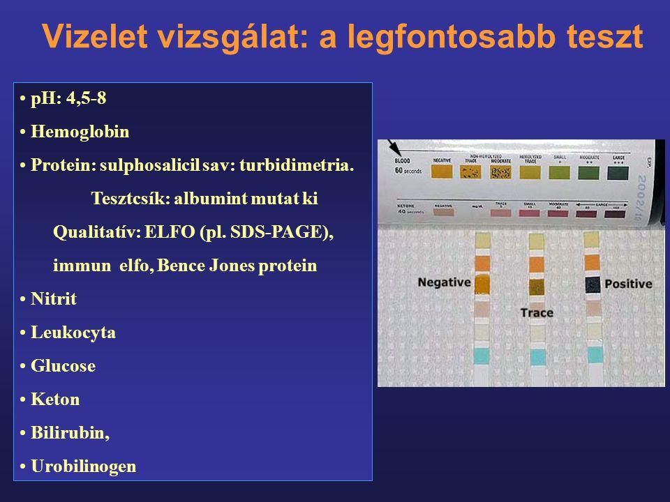 Vizelet vizsgálat: a legfontosabb teszt pH: 4,5-8 Hemoglobin Protein: sulphosalicil sav: turbidimetria. Tesztcsík: albumint mutat ki Qualitatív: ELFO