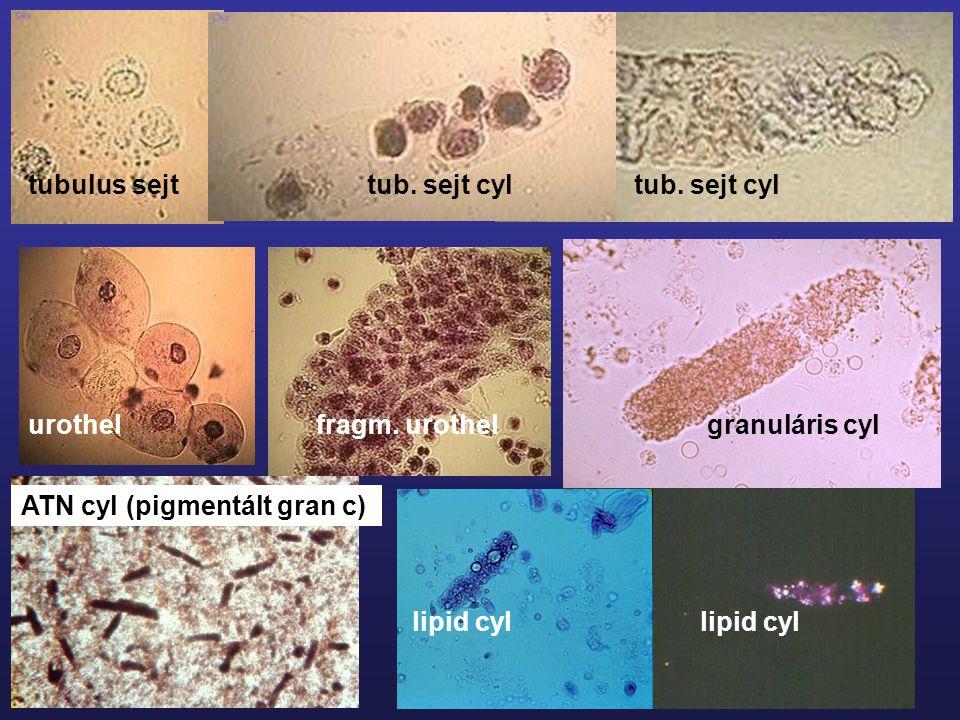 tubulus sejt tub. sejt cyl tub. sejt cyl urothelfragm. urothel granuláris cyllipid cyl ATN cyl (pigmentált gran c)