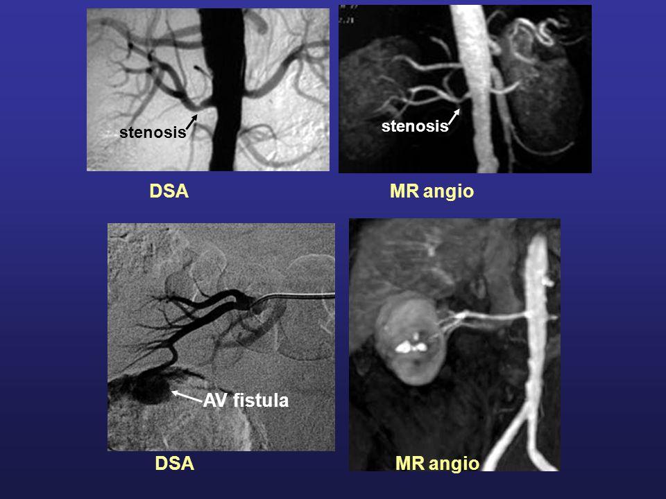 DSA MR angio AV fistula stenosis