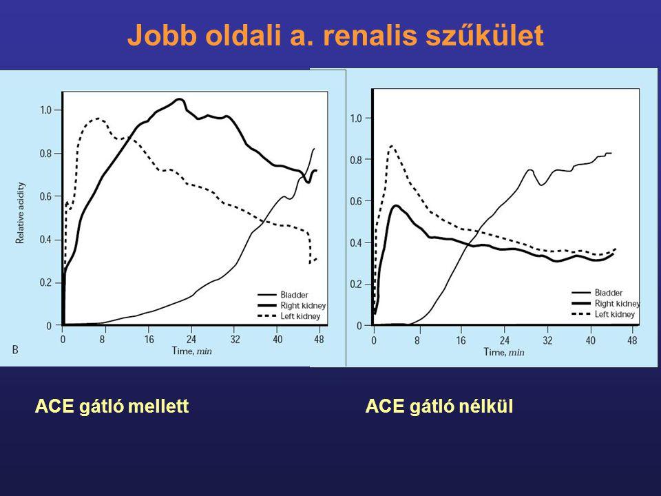 ACE gátló mellettACE gátló nélkül Jobb oldali a. renalis szűkület