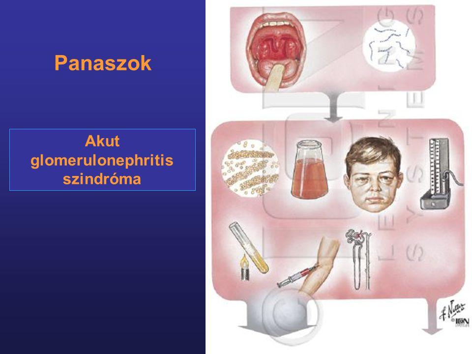 Akut glomerulonephritis szindróma Panaszok