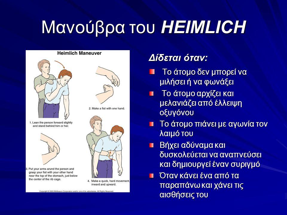 Μανούβρα του HEIMLICH Δίδεται όταν: Το άτομο δεν μπορεί να μιλήσει ή να φωνάξει Το άτομο δεν μπορεί να μιλήσει ή να φωνάξει Το άτομο αρχίζει και μελαν