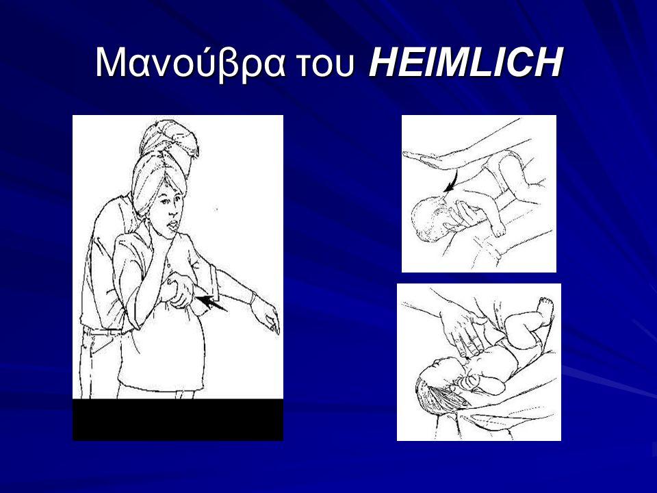 Μανούβρα του HEIMLICH