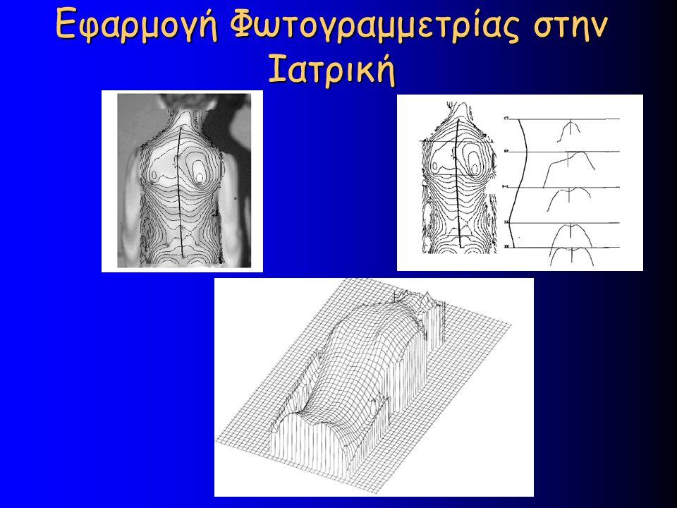 Εφαρμογή Φωτογραμμετρίας στην Ιατρική