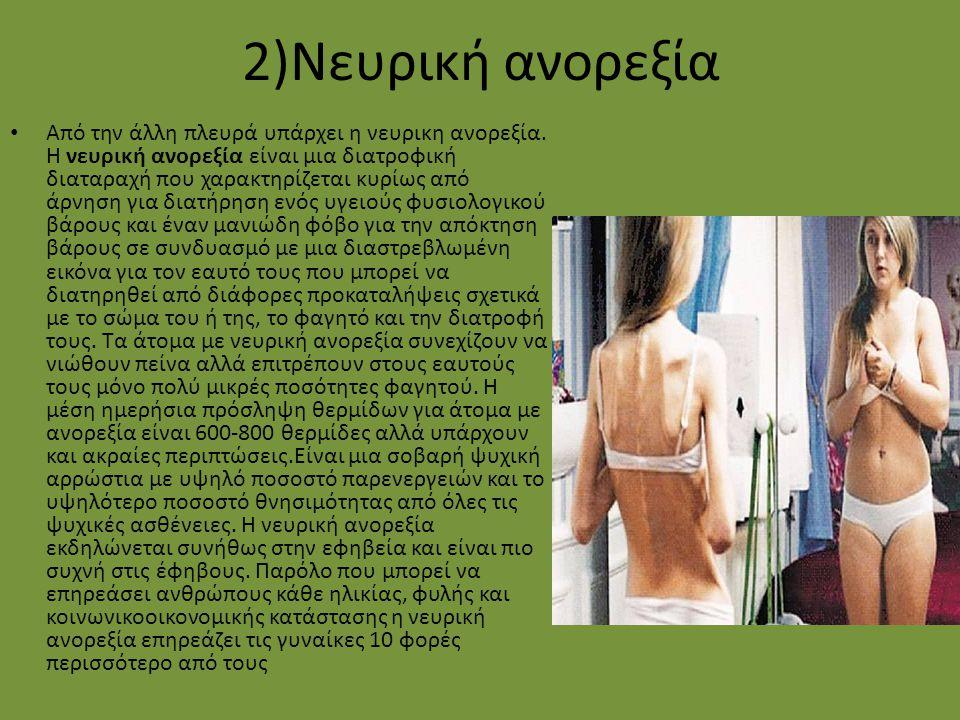 2)Νευρική ανορεξία Από την άλλη πλευρά υπάρχει η νευρικη ανορεξία. Η νευρική ανορεξία είναι μια διατροφική διαταραχή που χαρακτηρίζεται κυρίως από άρν