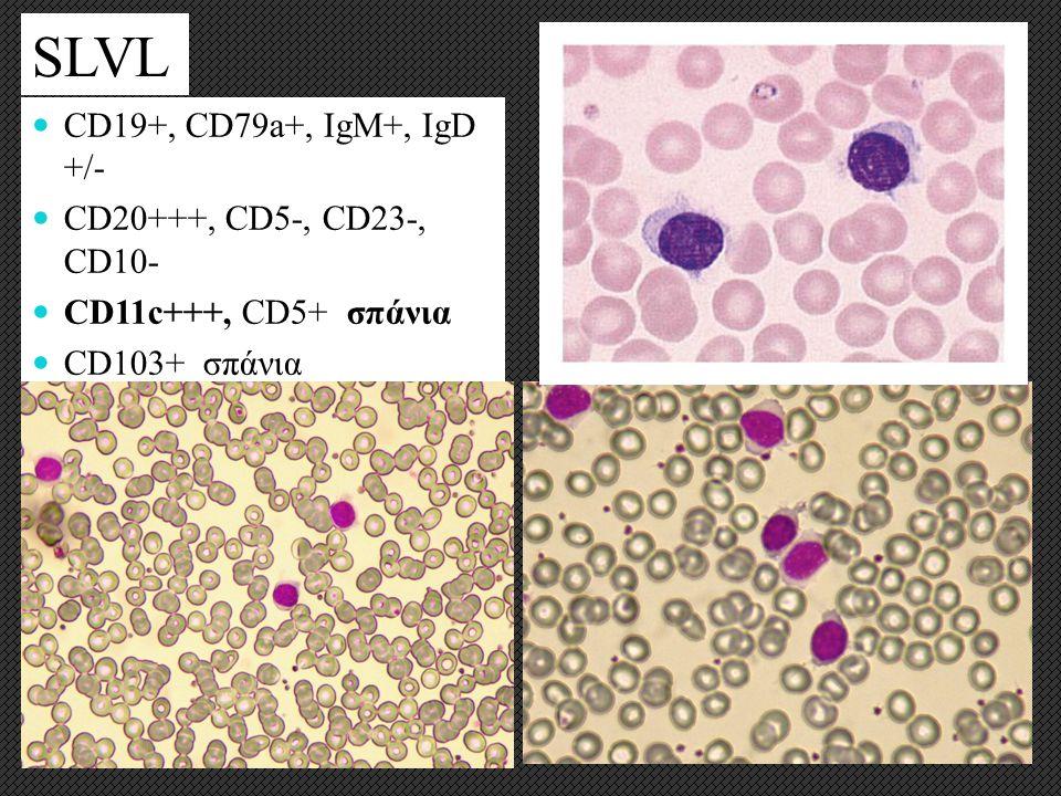 SLVL CD19+, CD79a+, IgM+, IgD +/- CD20+++, CD5-, CD23-, CD10- CD11c+++, CD5+ σπάνια CD103+ σπάνια Λεμφοκύτταρα μετρίου μεγέθους, πυκνωτική χρωματίνη,