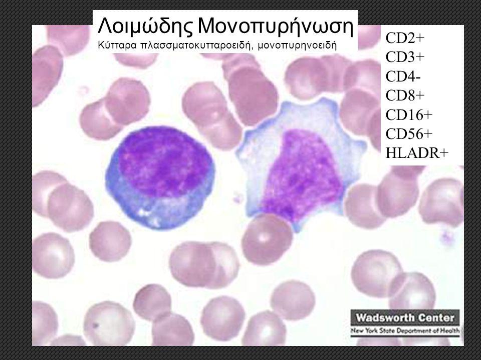 Λοιμώδης Μονοπυρήνωση Κύτταρα πλασσματοκυτταροειδή, μονοπυρηνοειδή CD2+ CD3+ CD4- CD8+ CD16+ CD56+ HLADR+