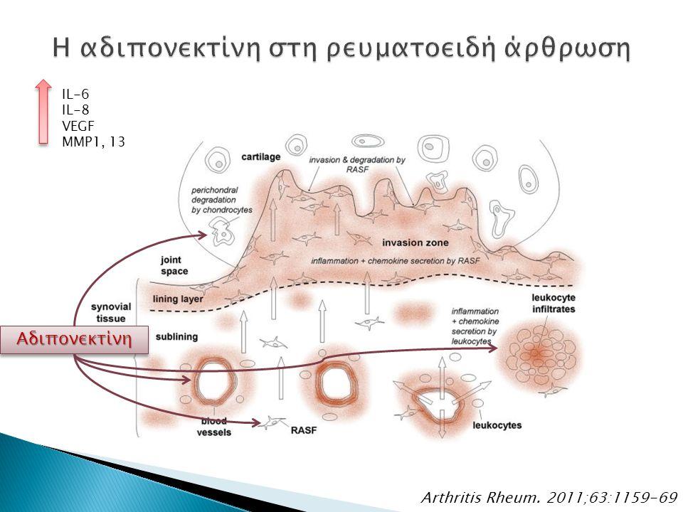 Arthritis Rheum. 2011;63:1159-69 ΑδιπονεκτίνηΑδιπονεκτίνη IL-6 IL-8 VEGF MMP1, 13