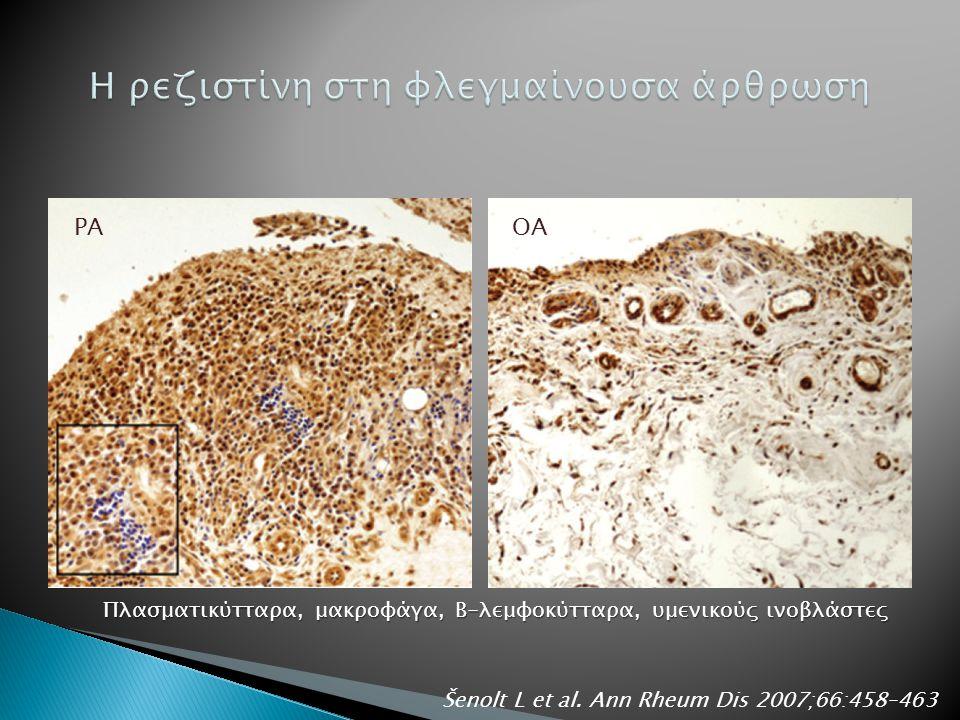 ΡΑΟΑ Πλασματικύτταρα, μακροφάγα, Β-λεμφοκύτταρα, υμενικούς ινοβλάστες Šenolt L et al.