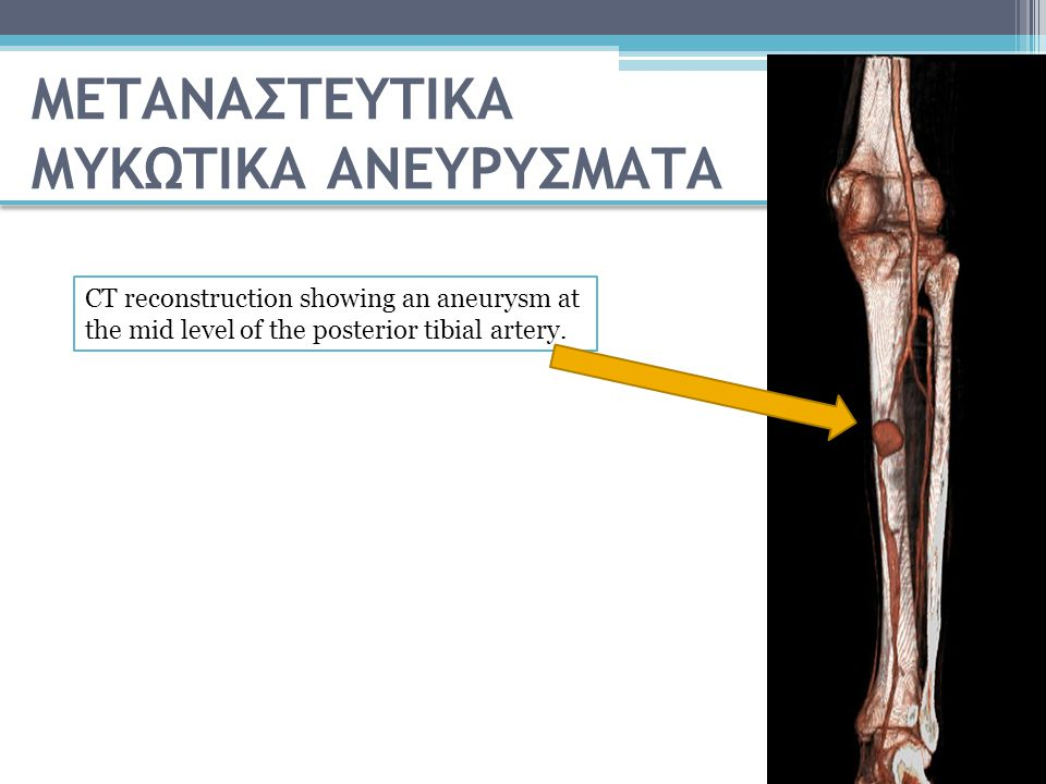 CT reconstruction showing an aneurysm at the mid level of the posterior tibial artery. ΜΕΤΑΝΑΣΤΕΥΤΙΚΑ ΜΥΚΩΤΙΚΑ ΑΝΕΥΡΥΣΜΑΤΑ