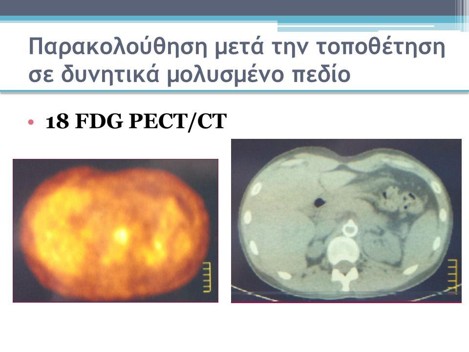 Παρακολούθηση μετά την τοποθέτηση σε δυνητικά μολυσμένο πεδίο 18 FDG PECT/CT