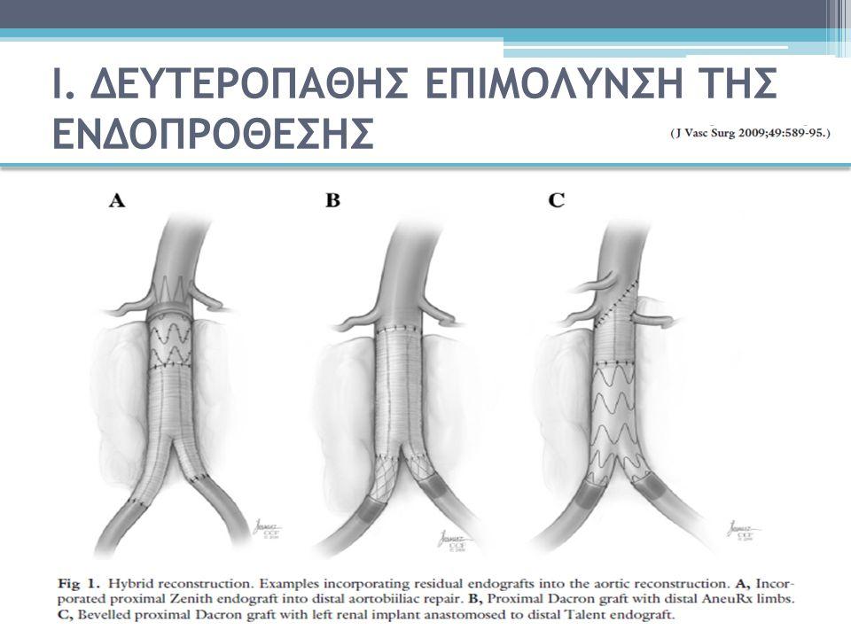 Απεικονιστική διάγνωση της λοίμωξης της ενδοπρόθεσης Bruggink EJVES 2010