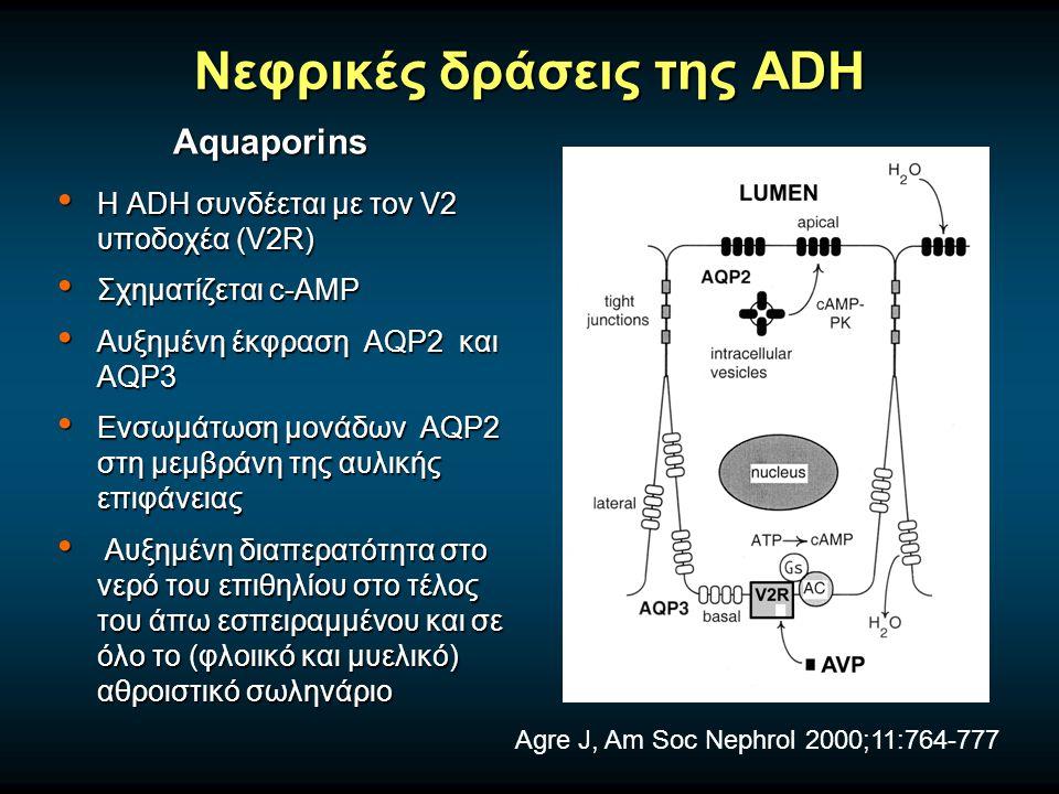 Νεφρικές δράσεις της ADH Η ADH συνδέεται με τον V2 υποδοχέα (V2R) Η ADH συνδέεται με τον V2 υποδοχέα (V2R) Σχηματίζεται c-AMP Σχηματίζεται c-AMP Αυξημένη έκφραση AQP2 και AQP3 Αυξημένη έκφραση AQP2 και AQP3 Ενσωμάτωση μονάδων AQP2 στη μεμβράνη της αυλικής επιφάνειας Ενσωμάτωση μονάδων AQP2 στη μεμβράνη της αυλικής επιφάνειας Αυξημένη διαπερατότητα στο νερό του επιθηλίου στο τέλος του άπω εσπειραμμένου και σε όλο το (φλοιικό και μυελικό) αθροιστικό σωληνάριο Αυξημένη διαπερατότητα στο νερό του επιθηλίου στο τέλος του άπω εσπειραμμένου και σε όλο το (φλοιικό και μυελικό) αθροιστικό σωληνάριο Aquaporins Agre J, Am Soc Nephrol 2000;11:764-777
