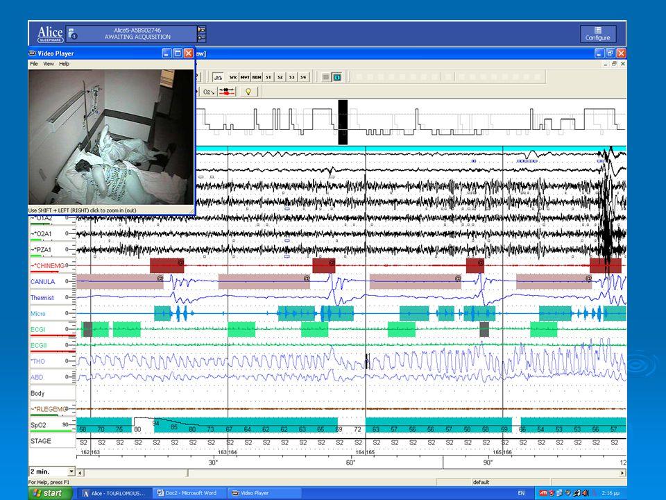 Ακριβής διάγνωση  ΑΗΙ  RDI  HYPOPNEAS  UARS  DESATURATION  AROUSAL  HEART RATE  ….