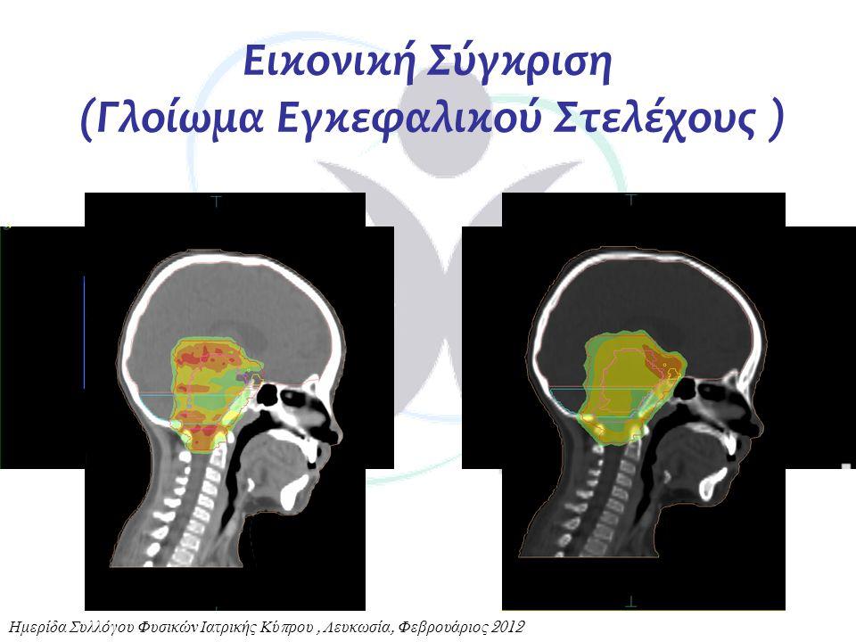 Εικονική Σύγκριση (Γλοίωμα Εγκεφαλικού Στελέχους ) Ημερίδα Συλλόγου Φυσικών Ιατρικής Κύ π ρου, Λευκωσία, Φεβρουάριος 2012