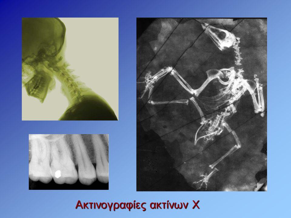 Ακτινογραφίες ακτίνων Χ