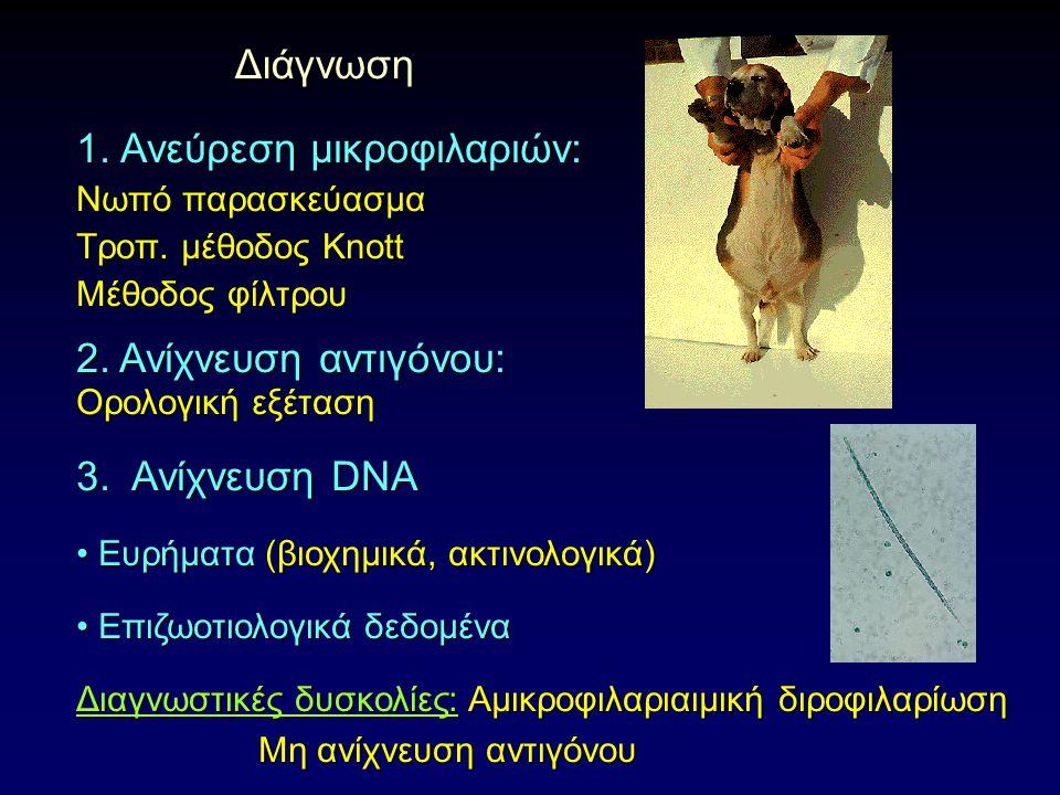 Διάγνωση Διάγνωση 1. Ανεύρεση μικροφιλαριών: Νωπό παρασκεύασμα Τροπ.