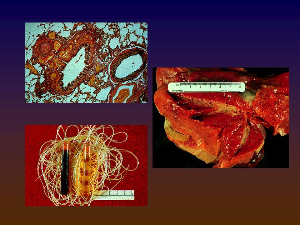 Συμπτώματα Συμπτώματα 1ο στάδιο: καθόλου ή ήπια συμπτώματα 1ο στάδιο: καθόλου ή ήπια συμπτώματα 2ο στάδιο:  Σ.Β., βήχας, ταχύπνοια, εύκολη κόπωση 2ο στάδιο:  Σ.Β., βήχας, ταχύπνοια, εύκολη κόπωση αιμόπτυση, υγροί τρίζοντες ρόγχοι, αναιμία, εωσινοφιλία, πρωτεϊνουρία.