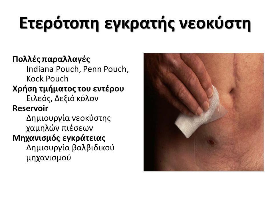 Somani et al, Urology 2009 ΠΛΕΟΝΕΚΤΗΜΑΤΑ Όχι εξωτερικός σάκκος Διακριτικότητα του στόματος ΜΕΙΟΝΕΚΤΗΜΑΤΑ Ανάγκη αυτοκαθετηριασμών Νεφρική ανεπάρκεια (GFR<50mL/min) ΕΠΙΠΛΟΚΕΣ Μεταβολική οξέωση Λιθίαση νεοκύστης 10-15% Στένωση στόματος 7-11% Στένωση αναστόμωσης ουρητήρων 7-8% Ακράτεια-επανεπέμβαση <5%
