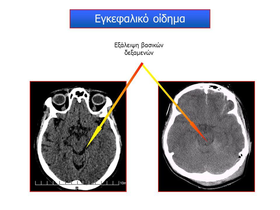 Εγκεφαλικό οίδημα Εξάλειψη βασικών δεξαμενών