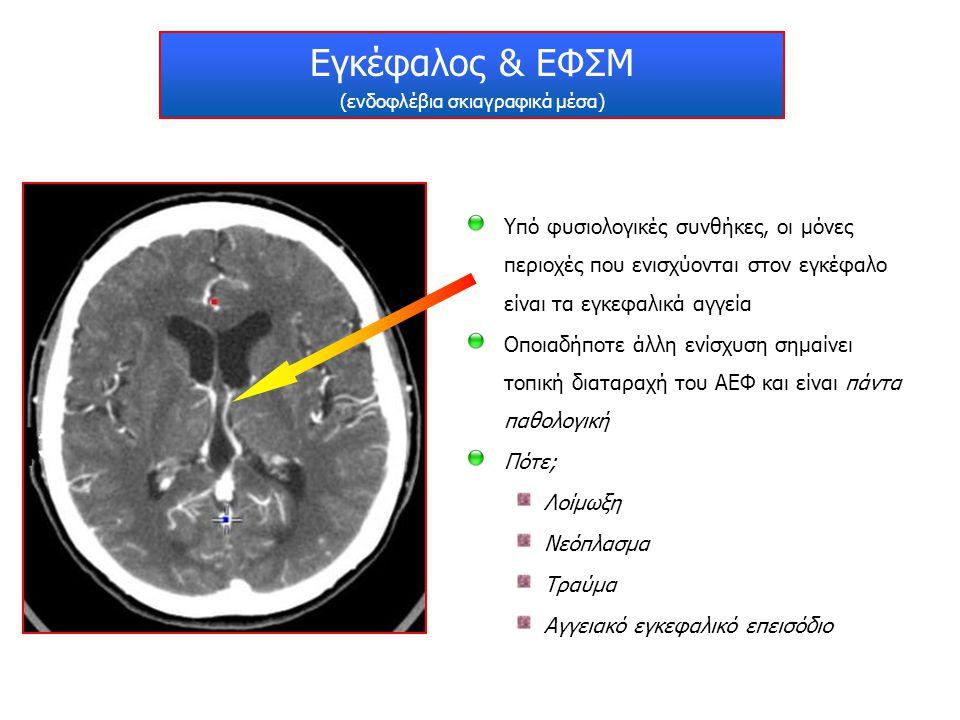 Εγκέφαλος & ΕΦΣΜ (ενδοφλέβια σκιαγραφικά μέσα) Υπό φυσιολογικές συνθήκες, οι μόνες περιοχές που ενισχύονται στον εγκέφαλο είναι τα εγκεφαλικά αγγεία Ο