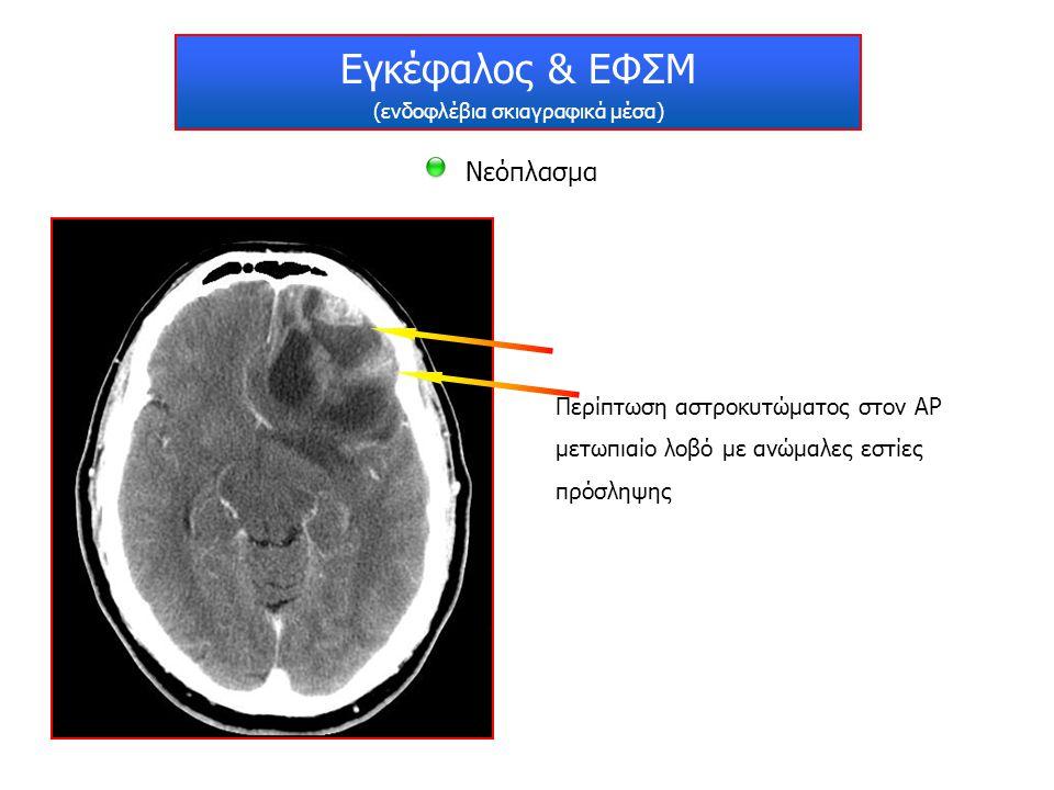 Εγκέφαλος & ΕΦΣΜ (ενδοφλέβια σκιαγραφικά μέσα) Λοίμωξη Περίπτωση εγκεφαλίτιδας με παθολογικές εστίες πρόσληψης στο ΔΕ θάλαμο και τις κεφαλές των κερκοφόρων πυρήνων αμφοτερόπλευρα