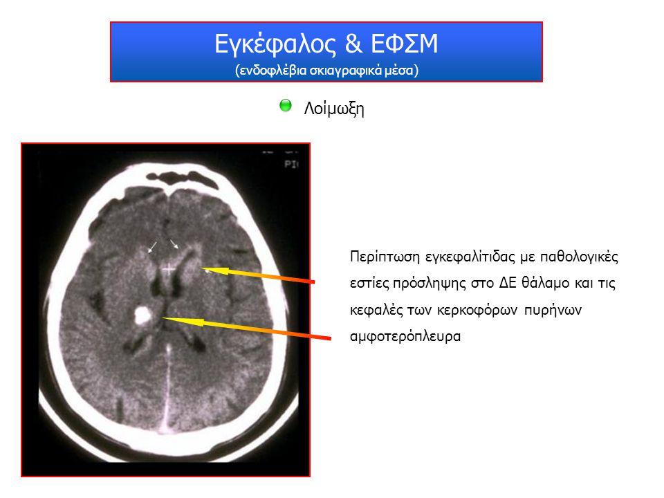 Εγκέφαλος & ΕΦΣΜ (ενδοφλέβια σκιαγραφικά μέσα) Λοίμωξη Περίπτωση εγκεφαλίτιδας με παθολογικές εστίες πρόσληψης στο ΔΕ θάλαμο και τις κεφαλές των κερκο
