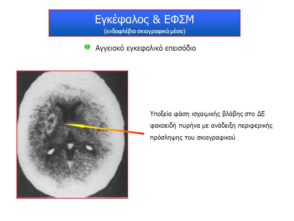 Εγκέφαλος & ΕΦΣΜ (ενδοφλέβια σκιαγραφικά μέσα) Αγγειακό εγκεφαλικό επεισόδιο Υποξεία φάση ισχαιμικής βλάβης στο ΔΕ φακοειδή πυρήνα με ανάδειξη περιφερ