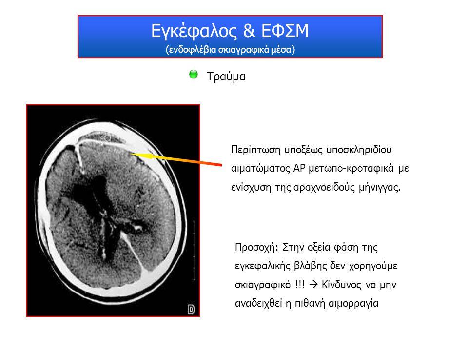 Εγκέφαλος & ΕΦΣΜ (ενδοφλέβια σκιαγραφικά μέσα) Τραύμα Περίπτωση υποξέως υποσκληριδίου αιματώματος ΑΡ μετωπο-κροταφικά με ενίσχυση της αραχνοειδούς μήν