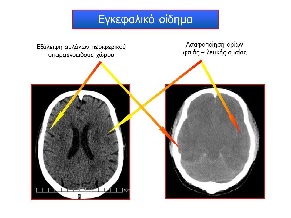 Εγκεφαλικό οίδημα Ασαφοποίηση ορίων φαιάς – λευκής ουσίας Εξάλειψη αυλάκων περιφερικού υπαραχνοειδούς χώρου
