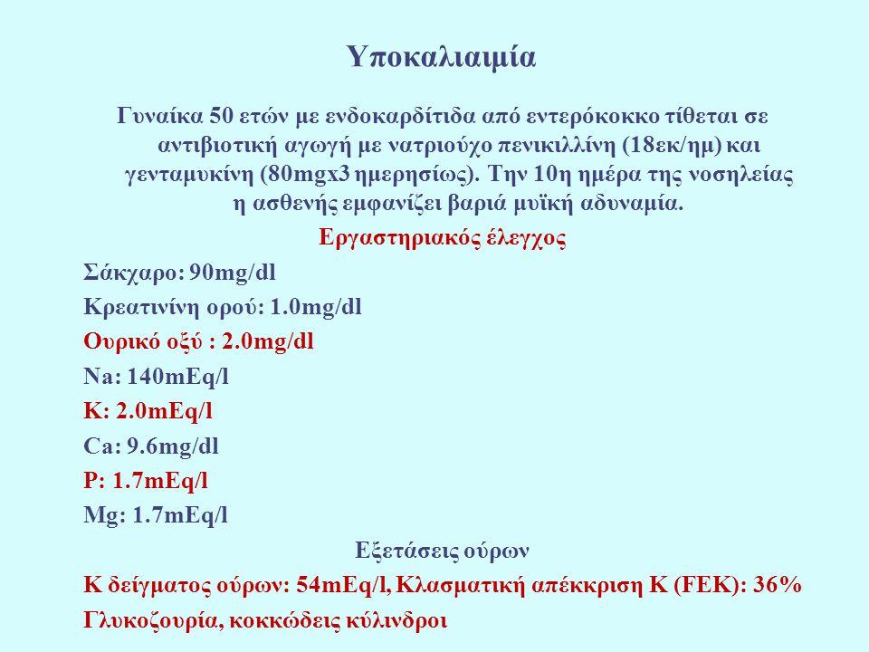 Υποκαλιαιμία Γυναίκα 50 ετών με ενδοκαρδίτιδα από εντερόκοκκο τίθεται σε αντιβιοτική αγωγή με νατριούχο πενικιλλίνη (18εκ/ημ) και γενταμυκίνη (80mgx3