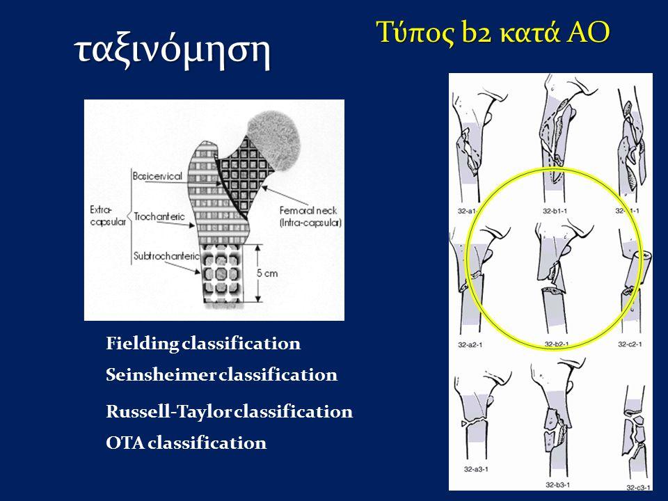 ταξινόμηση Τύπος b2 κατά ΑΟ Fielding classification Seinsheimer classification Russell-Taylor classification OTA classification