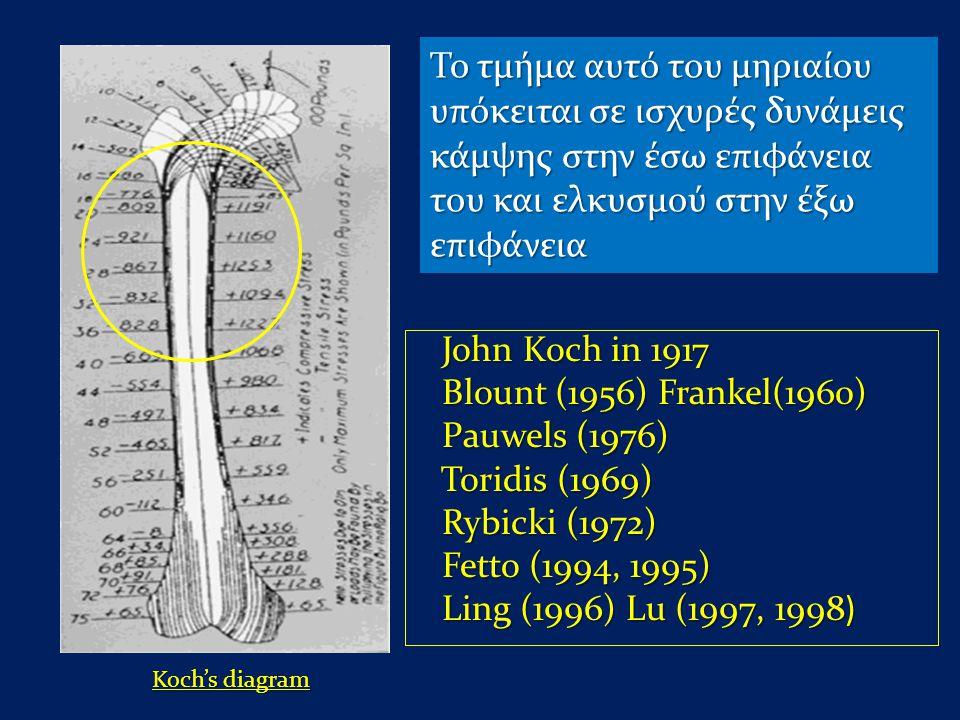 John Koch in 1917 John Koch in 1917 Blount (1956) Frankel(1960) Blount (1956) Frankel(1960) Pauwels (1976) Pauwels (1976) Toridis (1969) Toridis (1969