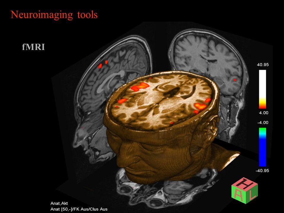 fMRI Neuroimaging tools