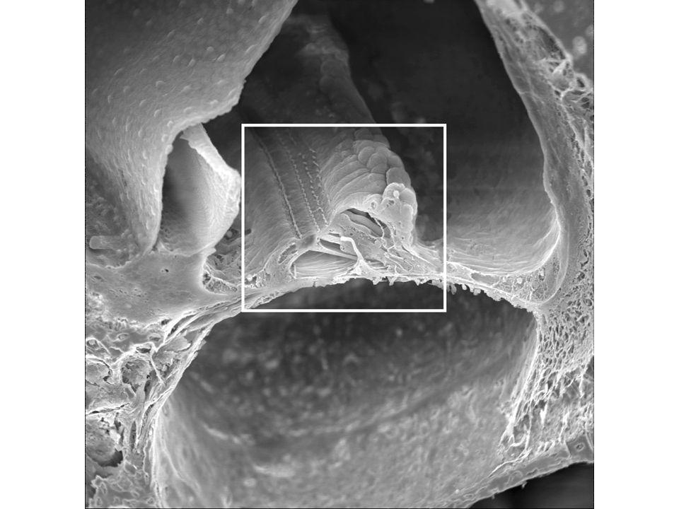 καλυπτήρια μεμβράνη στερεοκροσσοί εξωτερικά τριχοφόρα κύτταρα φυγόκεντροι νευράξονες δίαυλος του Corti εσωτερικά τριχοφόρα κύτταρα βασική μεμβράνη κεντρομόλοι νευράξονες