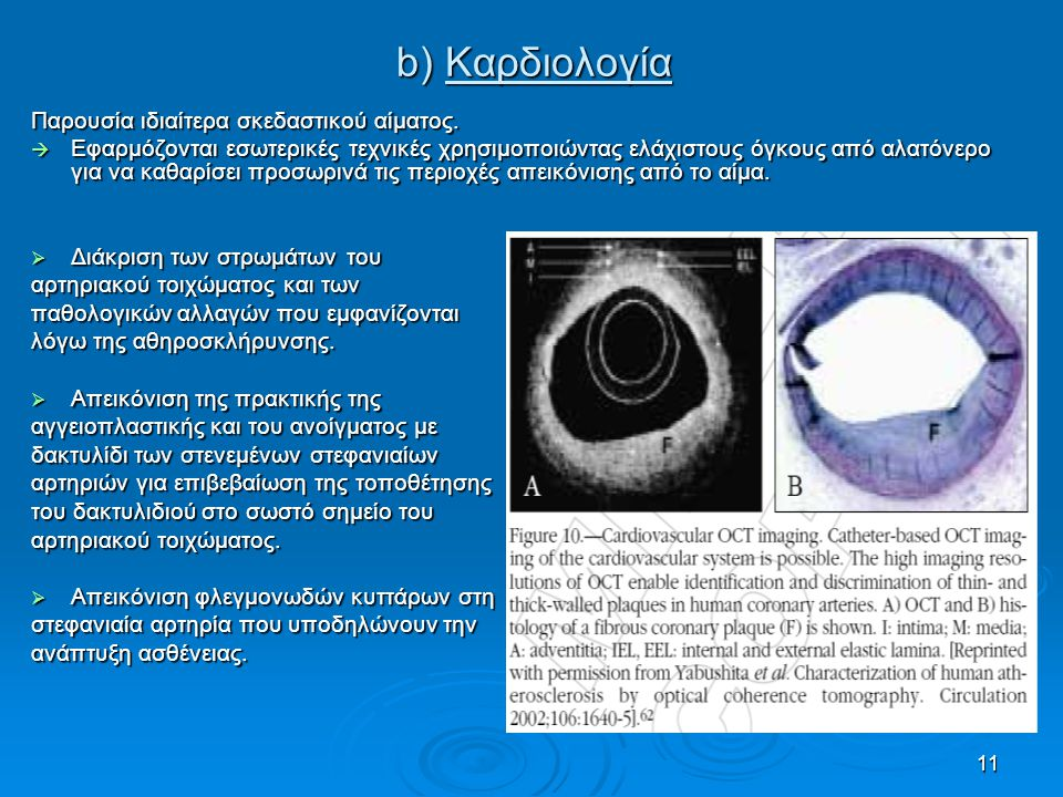 11 b) Καρδιολογία Παρουσία ιδιαίτερα σκεδαστικού αίματος.  Εφαρμόζονται εσωτερικές τεχνικές χρησιμοποιώντας ελάχιστους όγκους από αλατόνερο για να κα