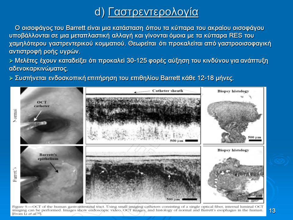 13 d) Γαστρεντερολογία Ο οισοφάγος του Barrett είναι μια κατάσταση όπου τα κύτταρα του ακραίου οισοφάγου υποβάλλονται σε μια μεταπλαστική αλλαγή και γ