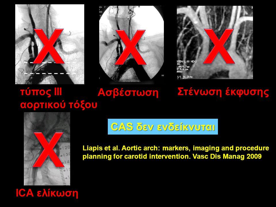 τύπος III αορτικού τόξου Ασβέστωση Στένωση έκφυσης ICA ελίκωση CAS δεν ενδείκνυται Vasc Dis Manag 2009 Liapis et al. Aortic arch: markers, imaging and