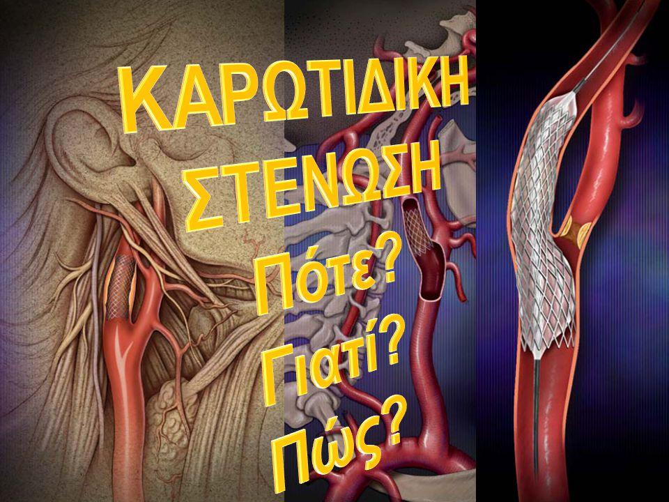 30day Outcome (Any Stroke ± MI and Death) NoCEA CAS KENTUCKY (B) Neurosurgery 2004 Όλοι ασυμπτωματικοί 850% SAPPHIRE NEJM 2004 70% ασυμπτωματικοί 334 234 9,8% 10,2% 4,8% 5,4% N.S.