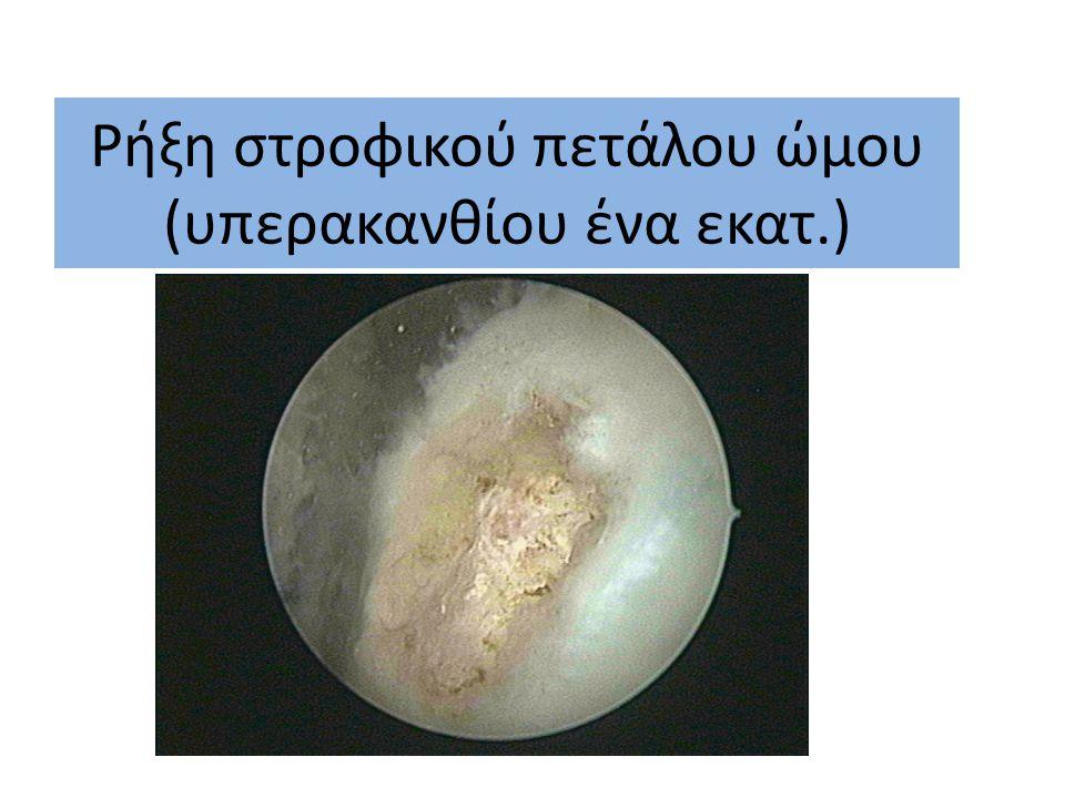 Τοποθέτηση μεταλλικής βίδας επί μείζων βραχιόνιου ογκώματος