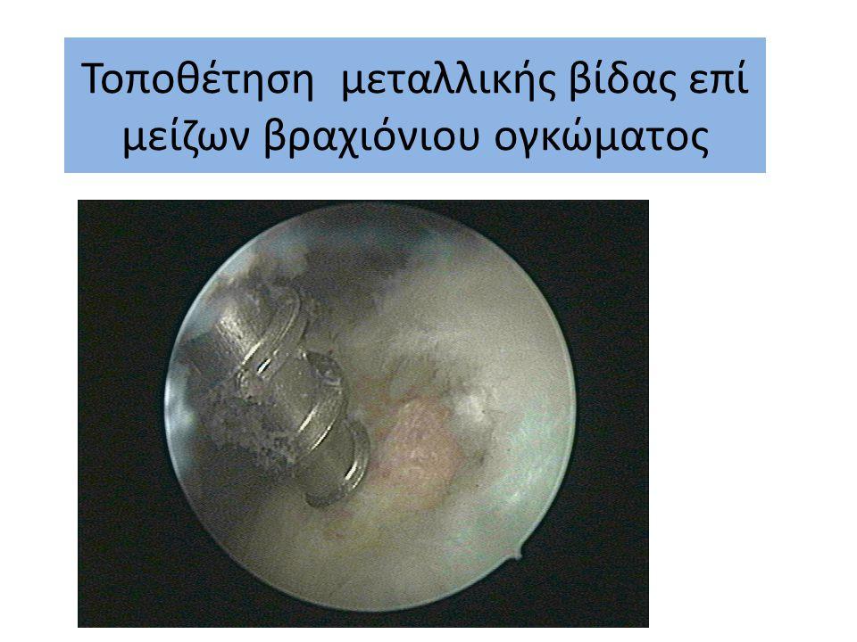 Σταδιακή συρραφή στροφικού πετάλου ώμου