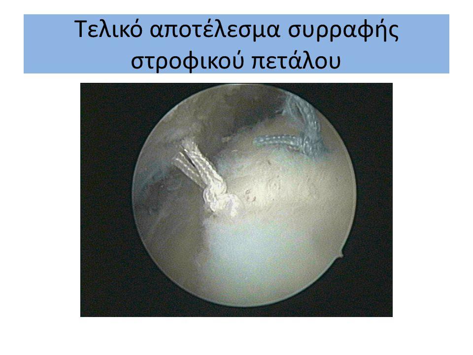 Τελικό αποτέλεσμα συρραφής υπερακανθίου τένοντα στροφικού πετάλου