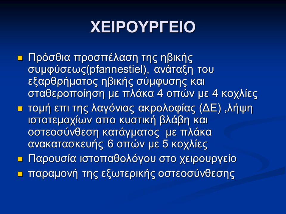 ΧΕΙΡΟΥΡΓΕΙΟ Πρόσθια προσπέλαση της ηβικής συμφύσεως(pfannestiel), ανάταξη του εξαρθρήματος ηβικής σύμφυσης και σταθεροποίηση με πλάκα 4 οπών με 4 κοχλ