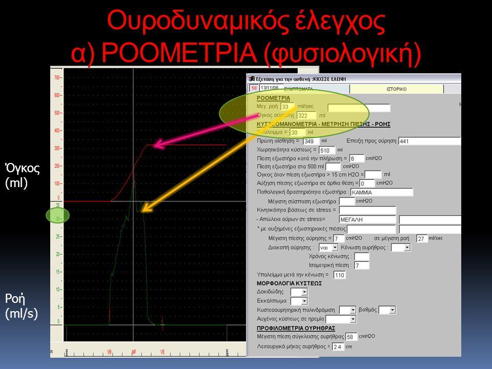 Ροή (ml/s) Όγκος (ml) Ουροδυναμικός έλεγχος α) ΡΟΟΜΕΤΡΙΑ (φυσιολογική)