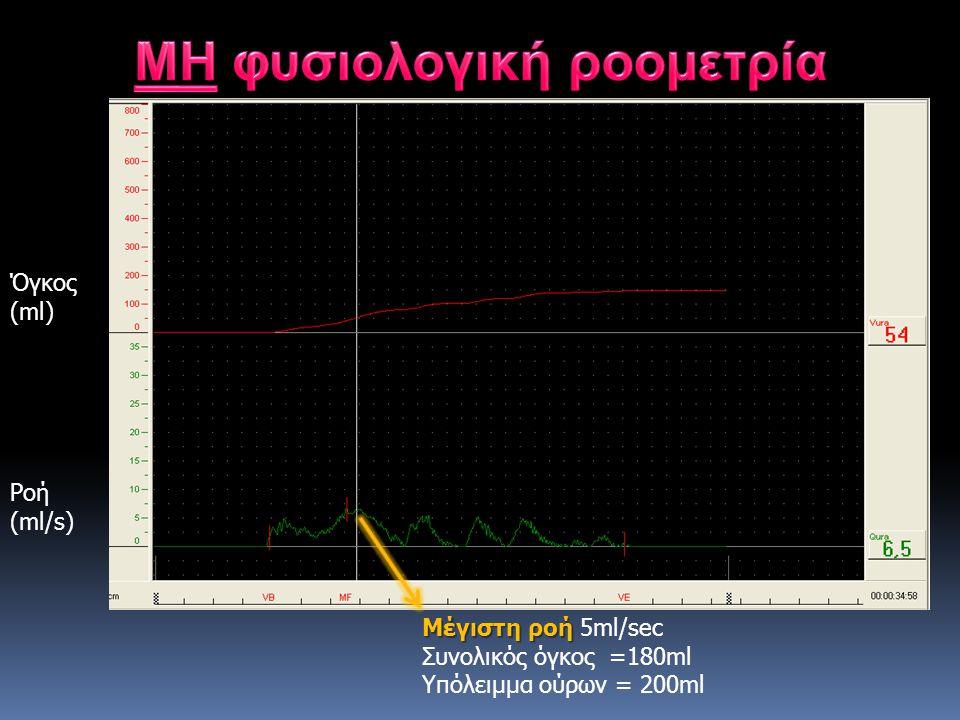 Μέγιστη ροή Μέγιστη ροή 5ml/sec Συνολικός όγκος =180ml Υπόλειμμα ούρων = 200ml Ροή (ml/s) Όγκος (ml)