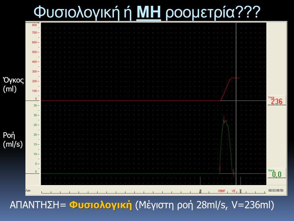 Φυσιολογική ή ΜΗ ροομετρία??? Ροή (ml/s) Όγκος (ml) Φυσιολογική ΑΠΑΝΤΗΣΗ= Φυσιολογική (Μέγιστη ροή 28ml/s, V=236ml)