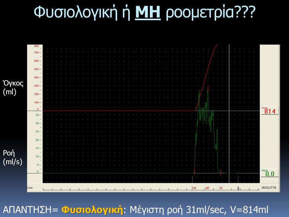 Φυσιολογική ΑΠΑΝΤΗΣΗ= Φυσιολογική: Μέγιστη ροή 31ml/sec, V=814ml Φυσιολογική ή ΜΗ ροομετρία??? Ροή (ml/s) Όγκος (ml)