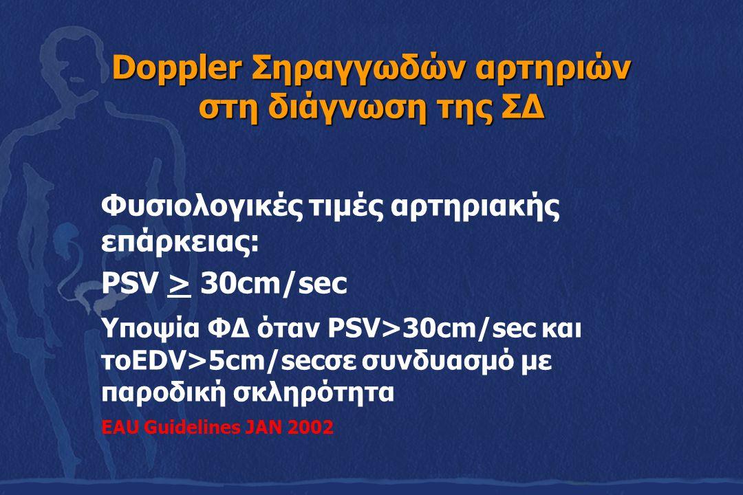 Doppler Σηραγγωδών αρτηριών στη διάγνωση της ΣΔ Φυσιολογικές τιμές αρτηριακής επάρκειας: PSV > 30cm/sec Υποψία ΦΔ όταν PSV>30cm/sec και τoEDV>5cm/secσ