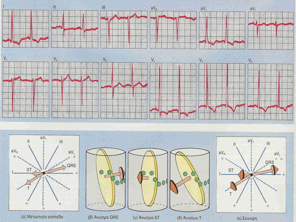 Γενικά ΗΚΓφικά ευρήματα Η ΥΑΚ μπορεί να προκαλέσει 5 μείζονες ΗΚΓφικες μεταβολές: 1.Αύξηση QRS voltage 2.Αύξηση διάρκειας QRS 3.Αριστερή στροφή του άξ